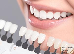 blanchiment Dentaire Marrakech