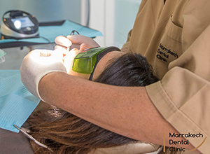 Soins au Laser Dentaire Marrakech