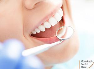 Prothèse Dentaire Marrakech